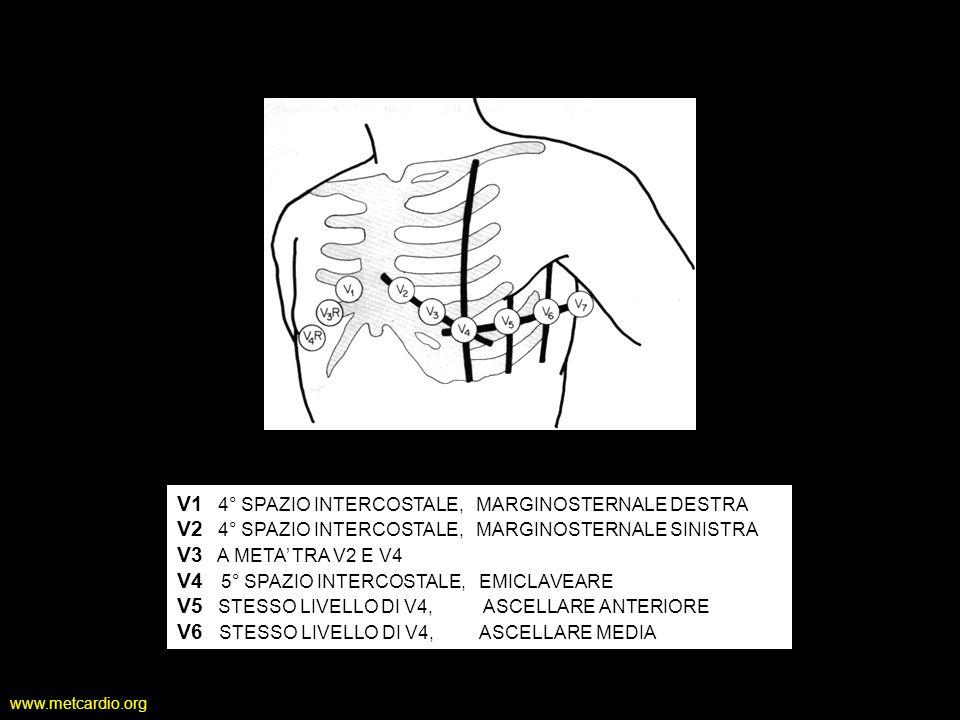 www.metcardio.org Derivazioni unipolari aVR registra il potenziale tra il braccio destro e il punto medio della linea che unisce il braccio sinistro e gamba sinistra