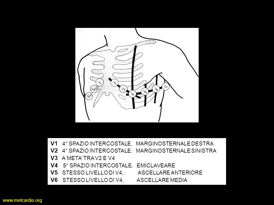 www.metcardio.org DESTROCARDIA TECNICA