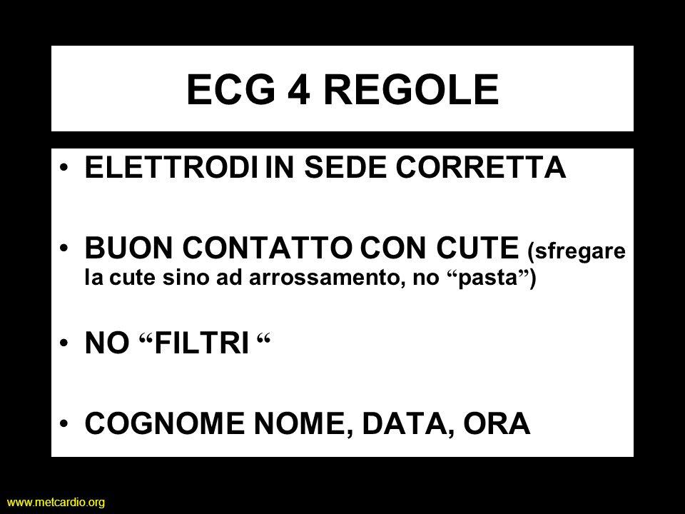 www.metcardio.org ECG 4 REGOLE ELETTRODI IN SEDE CORRETTA BUON CONTATTO CON CUTE (sfregare la cute sino ad arrossamento, no pasta ) NO FILTRI COGNOME