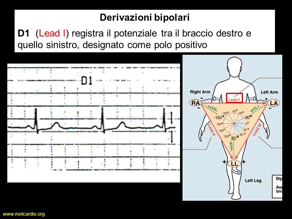 Derivazioni bipolari D1 (Lead I) registra il potenziale tra il braccio destro e quello sinistro, designato come polo positivo