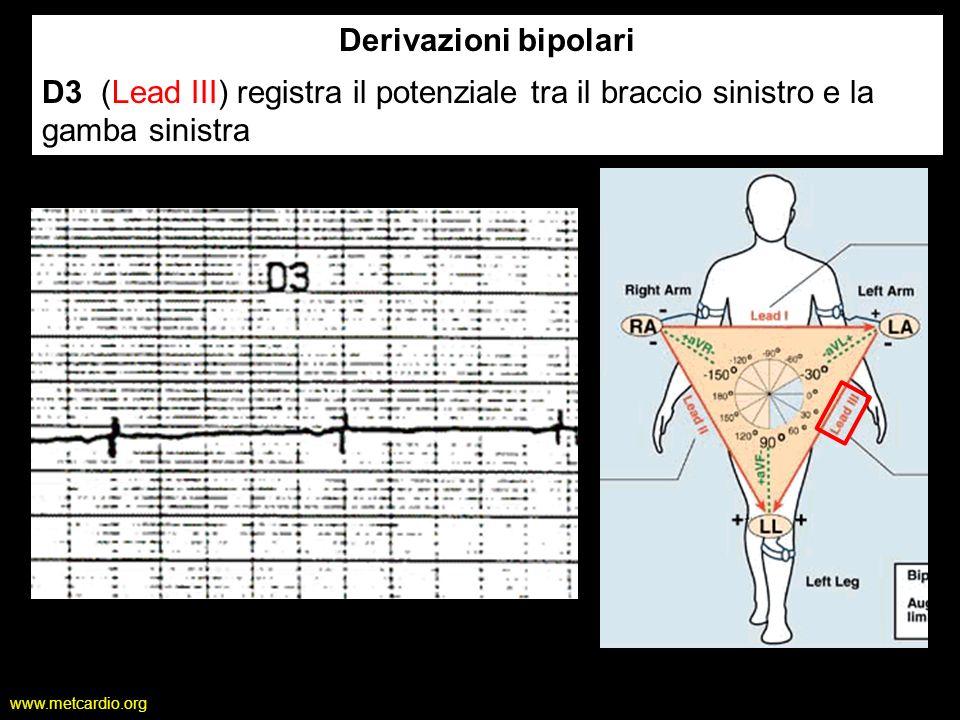 www.metcardio.org Derivazioni bipolari D3 (Lead III) registra il potenziale tra il braccio sinistro e la gamba sinistra