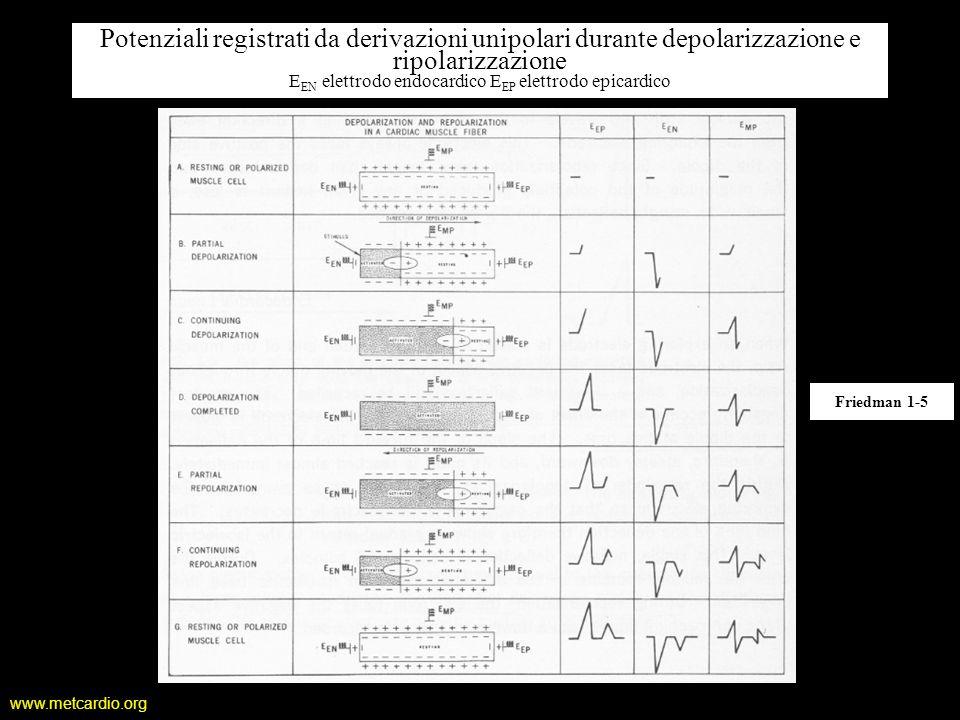 www.metcardio.org Potenziali registrati da derivazioni unipolari durante depolarizzazione e ripolarizzazione E EN elettrodo endocardico E EP elettrodo