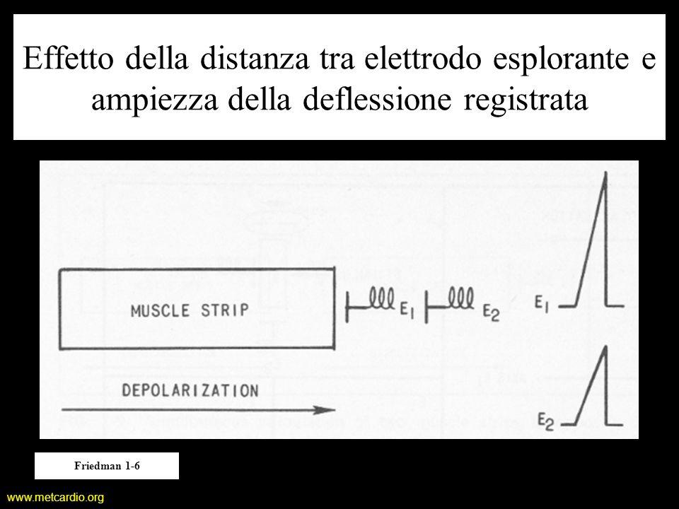 www.metcardio.org Effetto della distanza tra elettrodo esplorante e ampiezza della deflessione registrata Friedman 1-6