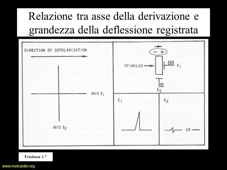 www.metcardio.org Relazione tra asse della derivazione e grandezza della deflessione registrata Friedman 1-7