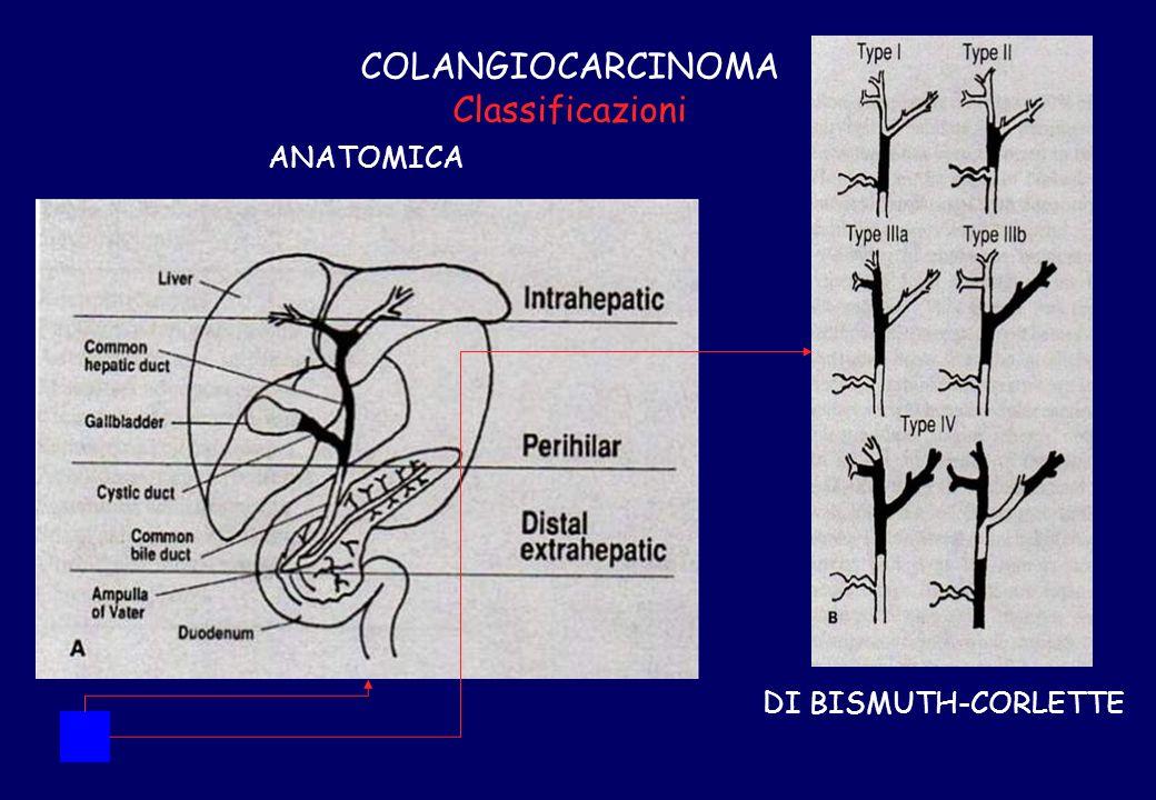 COLANGIOCARCINOMA Classificazioni ANATOMICA DI BISMUTH-CORLETTE