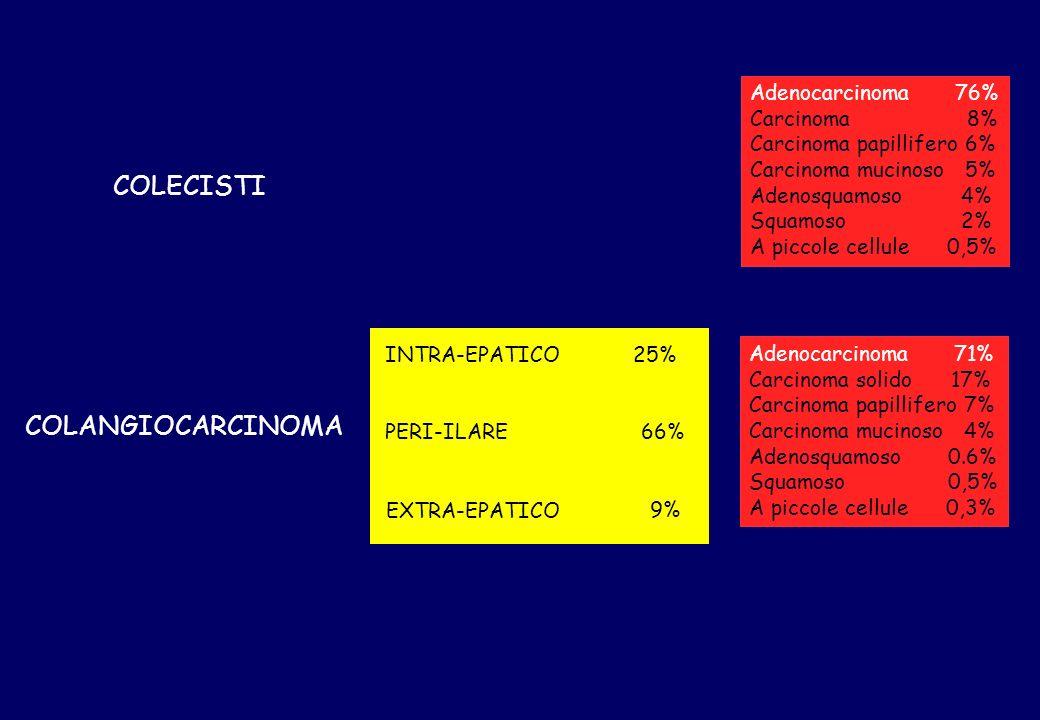 COLECISTI COLANGIOCARCINOMA INTRA-EPATICO PERI-ILARE EXTRA-EPATICO 66% 25% 9% Adenocarcinoma 76% Carcinoma 8% Carcinoma papillifero 6% Carcinoma mucin