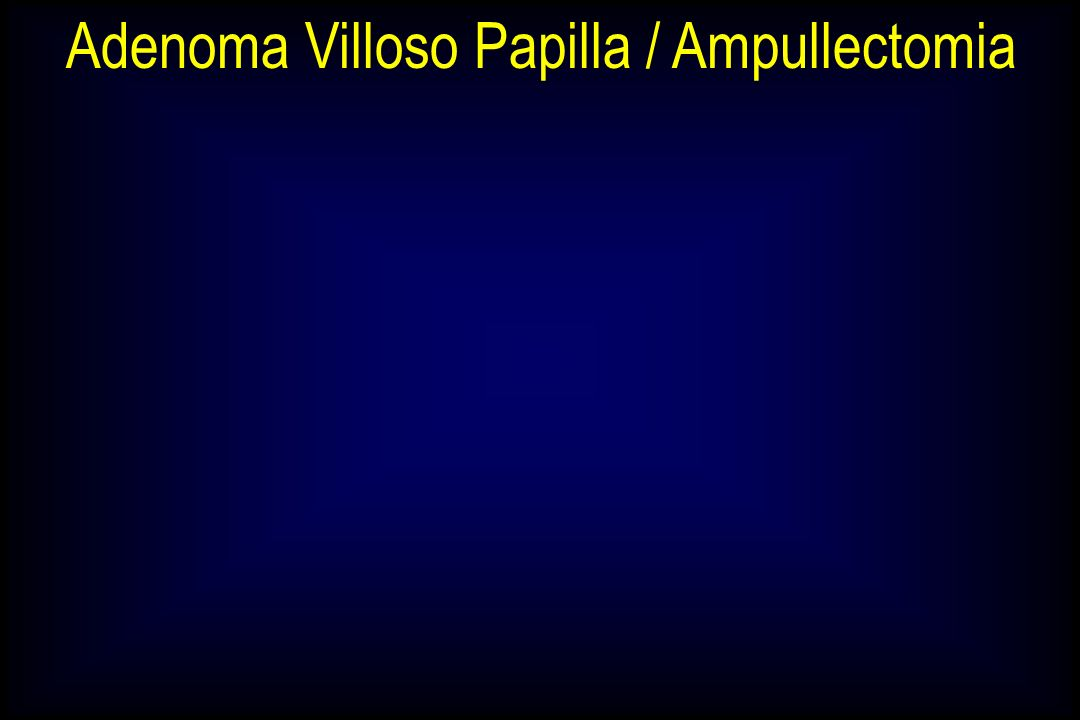Adenoma Villoso Papilla / Ampullectomia