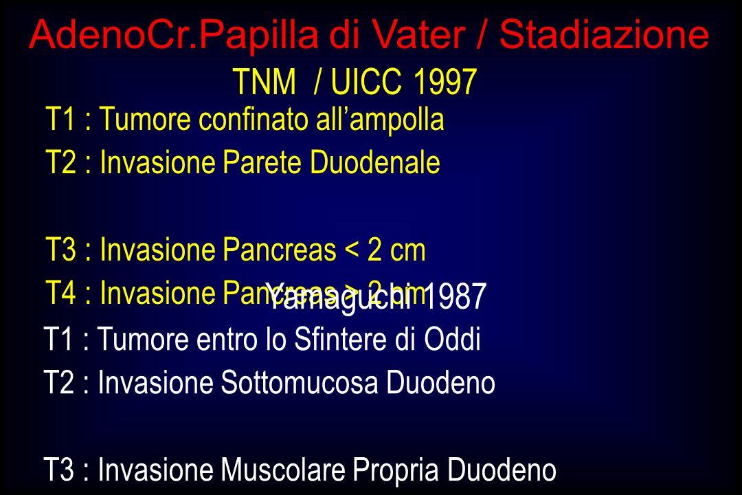 AdenoCr.Papilla di Vater / Stadiazione T1 : Tumore confinato allampolla T2 : Invasione Parete Duodenale T3 : Invasione Pancreas < 2 cm T4 : Invasione