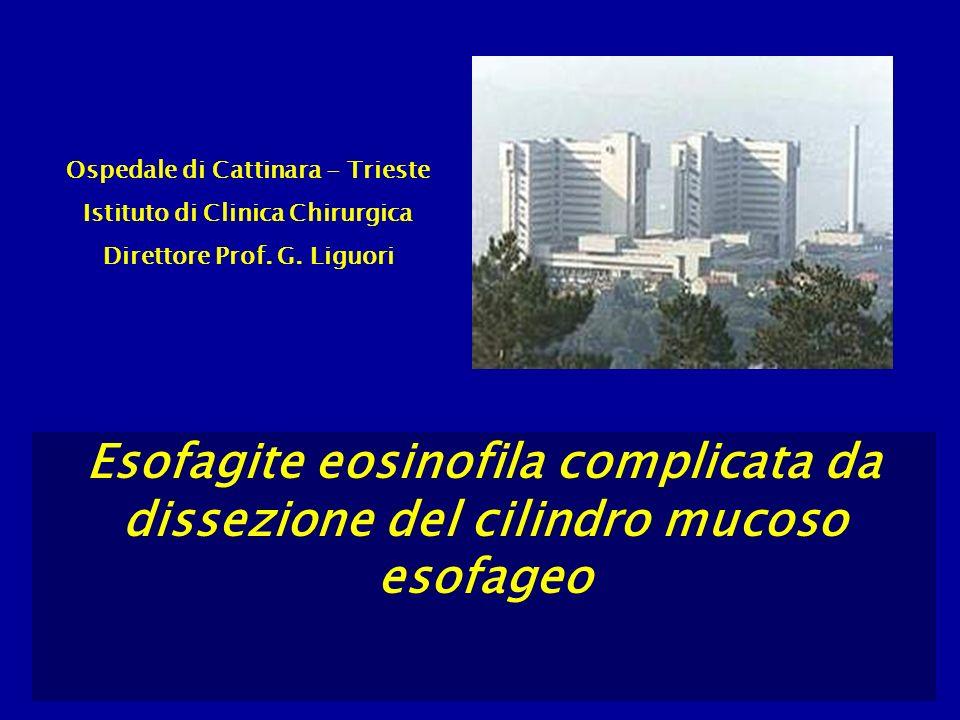 Ospedale di Cattinara - Trieste Istituto di Clinica Chirurgica Direttore Prof. G. Liguori Esofagite eosinofila complicata da dissezione del cilindro m