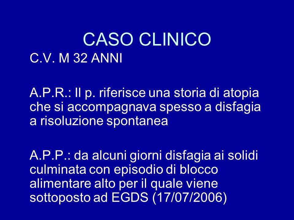 CASO CLINICO C.V. M 32 ANNI A.P.R.: Il p. riferisce una storia di atopia che si accompagnava spesso a disfagia a risoluzione spontanea A.P.P.: da alcu