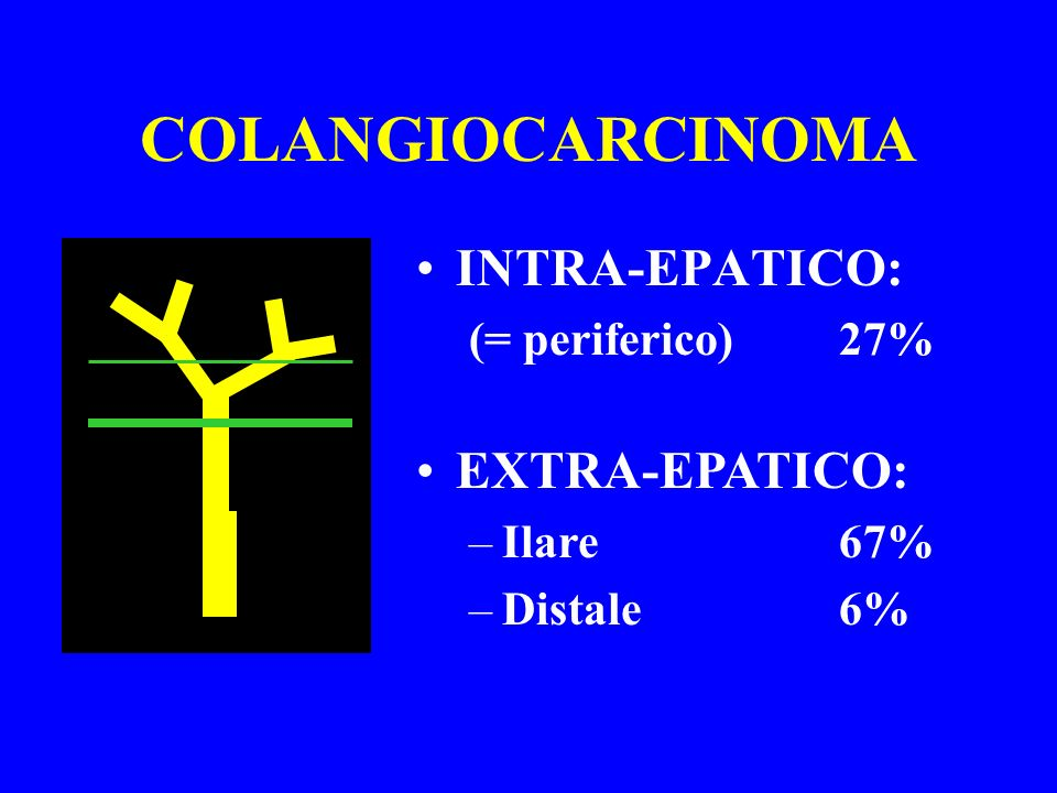 COLANGIOCARCINOMA INTRA-EPATICO: (= periferico)27% EXTRA-EPATICO: –Ilare67% –Distale6%