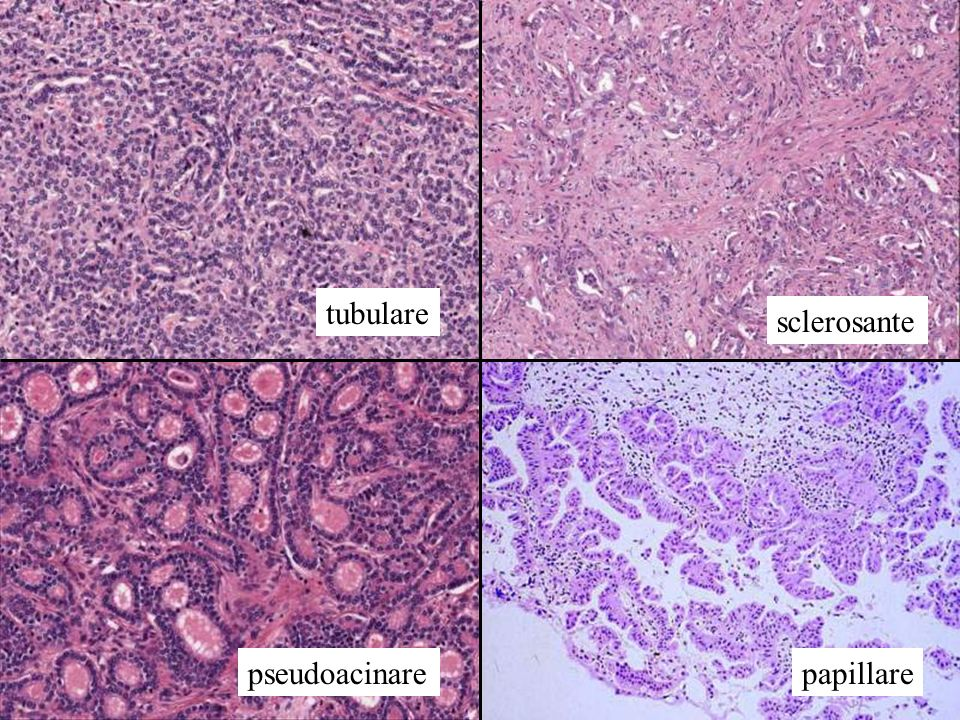 tubulare sclerosante pseudoacinarepapillare