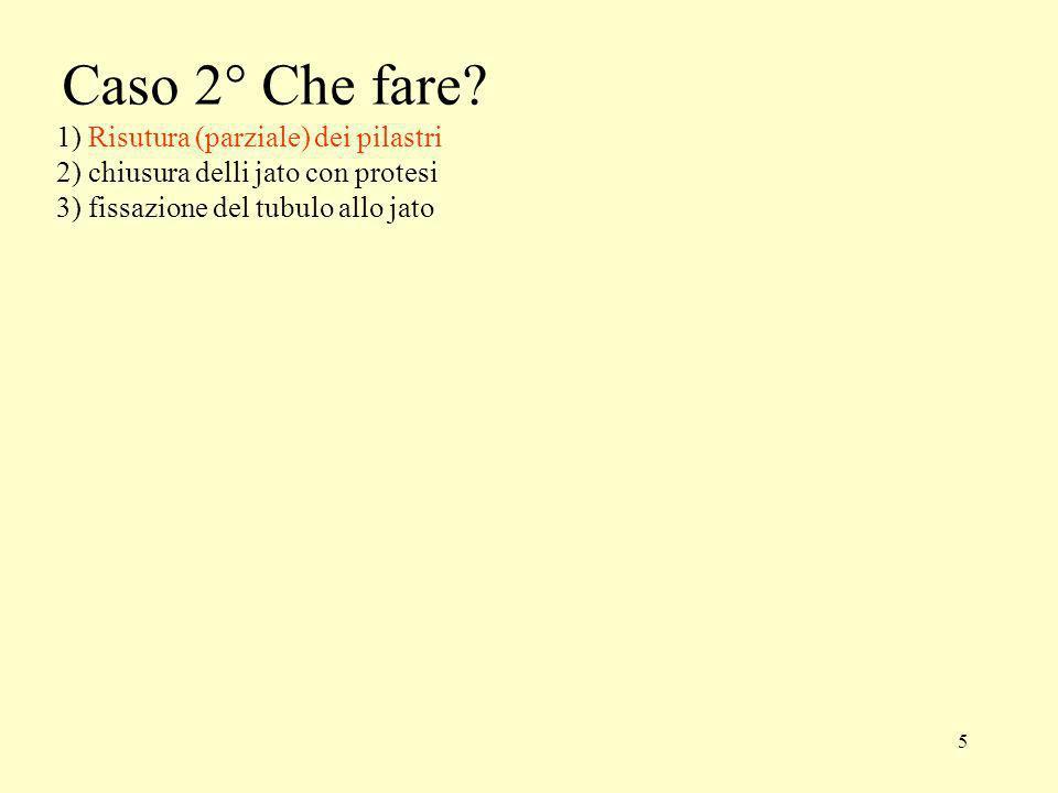 5 Caso 2° Che fare? 1) Risutura (parziale) dei pilastri 2) chiusura delli jato con protesi 3) fissazione del tubulo allo jato