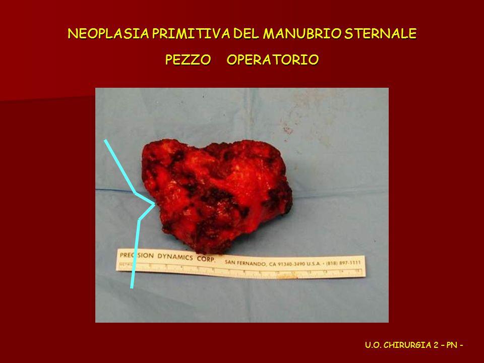 NEOPLASIA PRIMITIVA DEL MANUBRIO STERNALE PEZZO OPERATORIO U.O. CHIRURGIA 2 – PN -