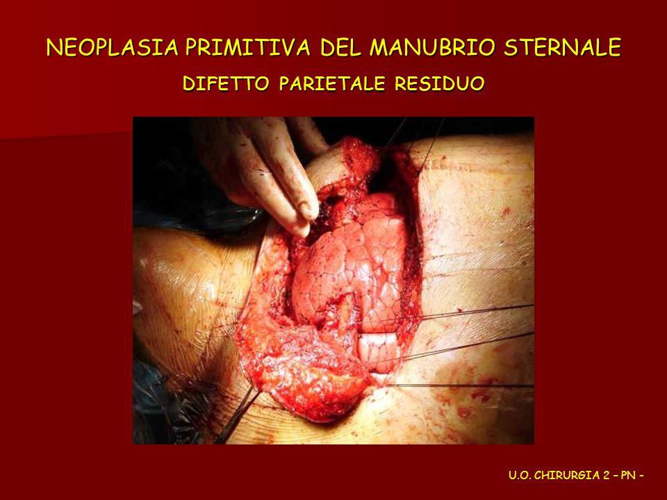 NEOPLASIA PRIMITIVA DEL MANUBRIO STERNALE DIFETTO PARIETALE RESIDUO U.O. CHIRURGIA 2 – PN -