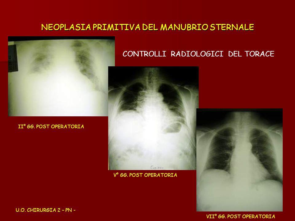 NEOPLASIA PRIMITIVA DEL MANUBRIO STERNALE CONTROLLI RADIOLOGICI DEL TORACE U.O. CHIRURGIA 2 – PN - II° GG. POST OPERATORIA V° GG. POST OPERATORIA VII°