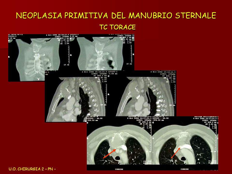 NEOPLASIA PRIMITIVA DEL MANUBRIO STERNALE TC TORACE U.O. CHIRURGIA 2 – PN -