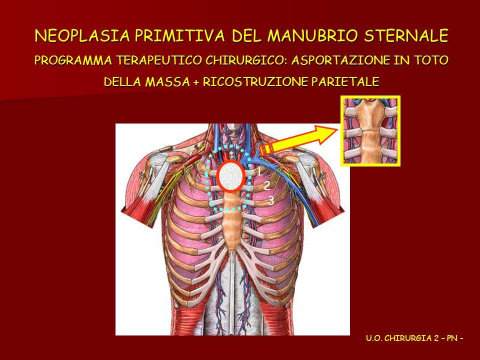 NEOPLASIA PRIMITIVA DEL MANUBRIO STERNALE PROGRAMMA TERAPEUTICO CHIRURGICO: ASPORTAZIONE IN TOTO DELLA MASSA + RICOSTRUZIONE PARIETALE 1 2 3 1 U.O. CH