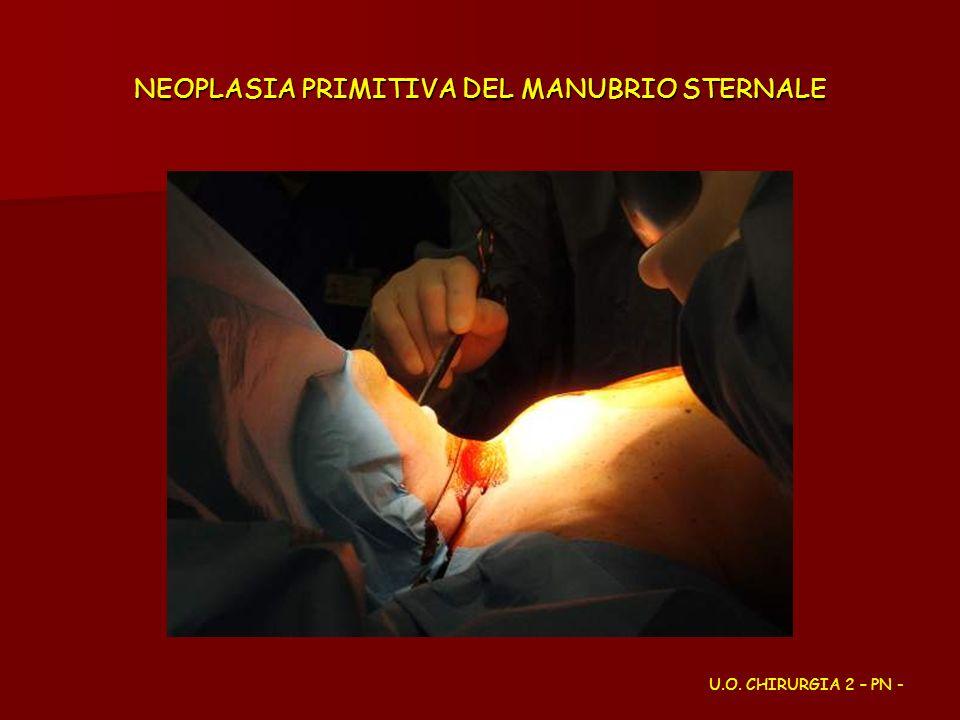 NEOPLASIA PRIMITIVA DEL MANUBRIO STERNALE U.O. CHIRURGIA 2 – PN -