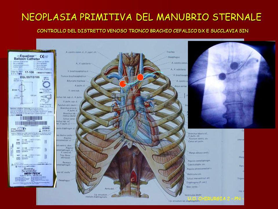 NEOPLASIA PRIMITIVA DEL MANUBRIO STERNALE CONTROLLO DEL DISTRETTO VENOSO TRONCO BRACHIO CEFALICO DX E SUCCLAVIA SIN U.O. CHIRURGIA 2 – PN -