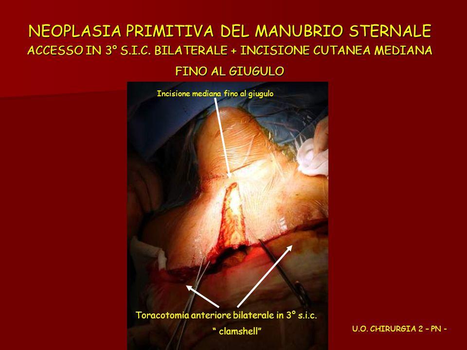 NEOPLASIA PRIMITIVA DEL MANUBRIO STERNALE ACCESSO IN 3° S.I.C. BILATERALE + INCISIONE CUTANEA MEDIANA FINO AL GIUGULO U.O. CHIRURGIA 2 – PN - Toracoto