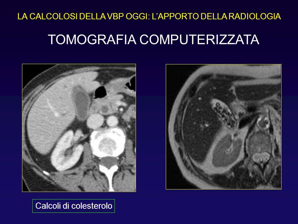 LA CALCOLOSI DELLA VBP OGGI: LAPPORTO DELLA RADIOLOGIA TOMOGRAFIA COMPUTERIZZATA Calcoli di colesterolo