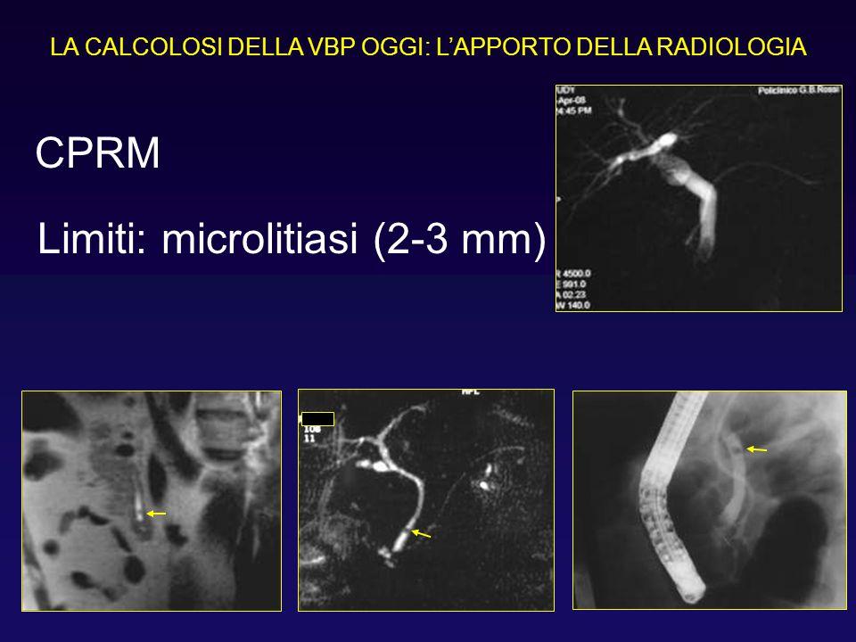 LA CALCOLOSI DELLA VBP OGGI: LAPPORTO DELLA RADIOLOGIA Limiti: microlitiasi (2-3 mm) CPRM
