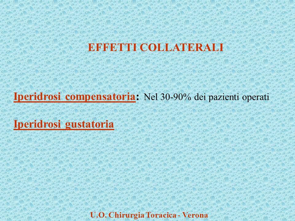 U.O. Chirurgia Toracica - Verona Iperidrosi compensatoria: Nel 30-90% dei pazienti operati Iperidrosi gustatoria EFFETTI COLLATERALI