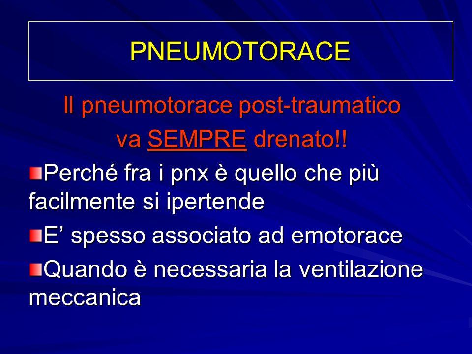 Il pneumotorace post-traumatico va SEMPRE drenato!! Perché fra i pnx è quello che più facilmente si ipertende E spesso associato ad emotorace Quando è