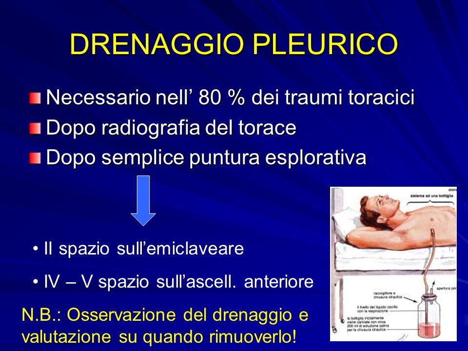 DRENAGGIO PLEURICO Necessario nell 80 % dei traumi toracici Dopo radiografia del torace Dopo semplice puntura esplorativa II spazio sullemiclaveare IV
