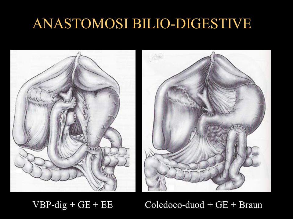 ANASTOMOSI BILIO-DIGESTIVE VBP-dig + GE + EEColedoco-duod + GE + Braun