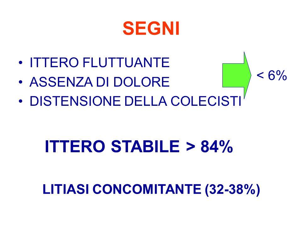 SEGNI ITTERO FLUTTUANTE ASSENZA DI DOLORE DISTENSIONE DELLA COLECISTI < 6% ITTERO STABILE > 84% LITIASI CONCOMITANTE (32-38%)