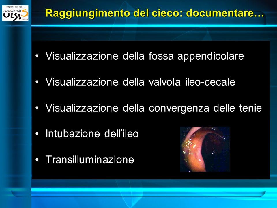 Raggiungimento del cieco: documentare… Visualizzazione della fossa appendicolare Visualizzazione della valvola ileo-cecale Visualizzazione della conve