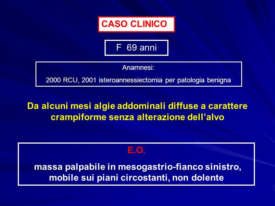CASO CLINICO F 69 anni Da alcuni mesi algie addominali diffuse a carattere crampiforme senza alterazione dellalvo E.O. massa palpabile in mesogastrio-