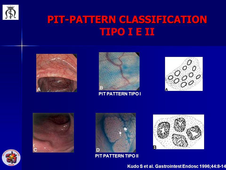 PIT-PATTERN CLASSIFICATION PIT-PATTERN CLASSIFICATION TIPO I E II Kudo S et al. Gastrointest Endosc 1996;44:8-14 PIT PATTERN TIPO I PIT PATTERN TIPO I