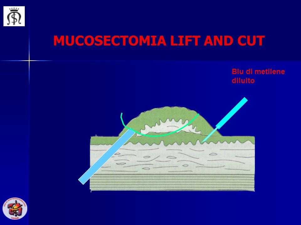 Blu di metilene diluito MUCOSECTOMIA LIFT AND CUT