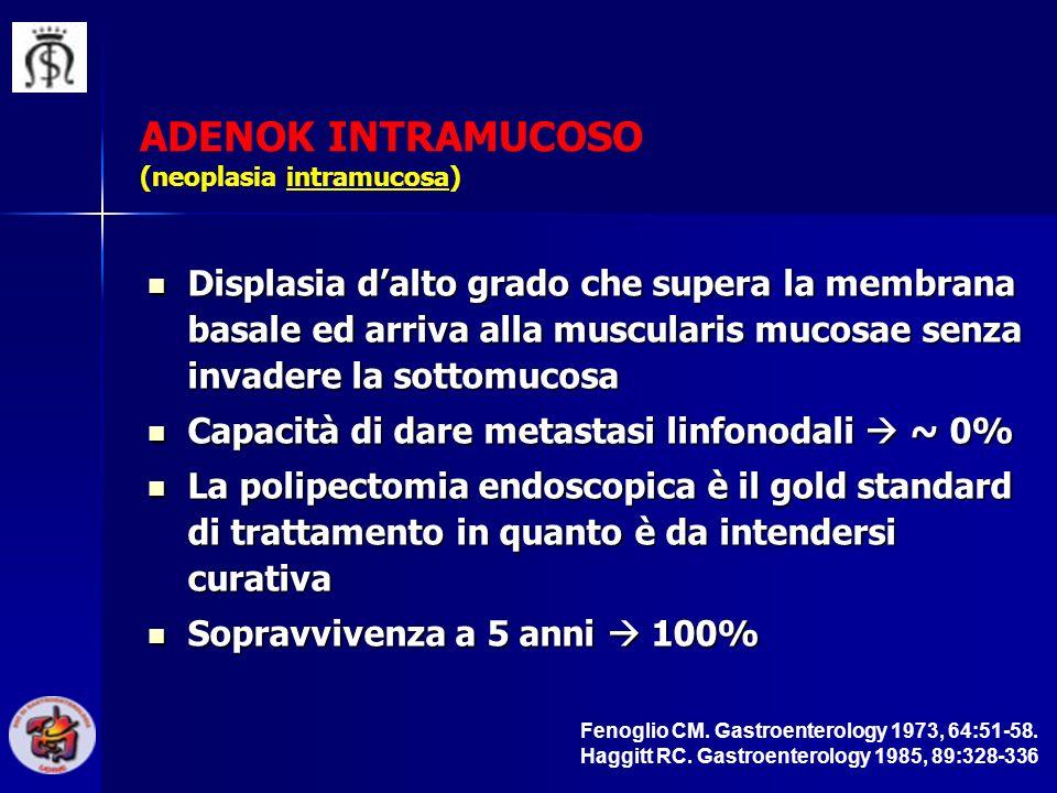 ADENOK INTRAMUCOSO (neoplasia intramucosa) Displasia dalto grado che supera la membrana basale ed arriva alla muscularis mucosae senza invadere la sot