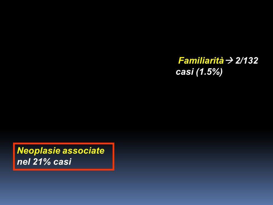 Familiarità 2/132 casi (1.5%) Neoplasie associate nel 21% casi