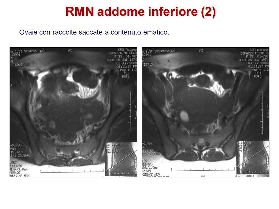 Ovaie con raccolte saccate a contenuto ematico. RMN addome inferiore (2)