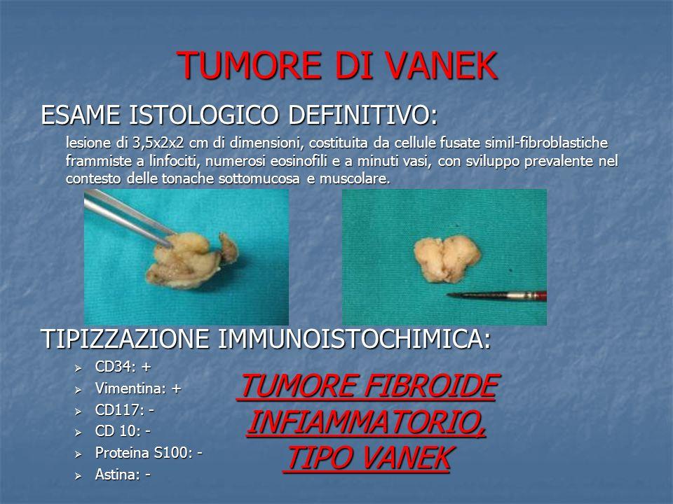 TUMORE DI VANEK ESAME ISTOLOGICO DEFINITIVO: lesione di 3,5x2x2 cm di dimensioni, costituita da cellule fusate simil-fibroblastiche frammiste a linfoc