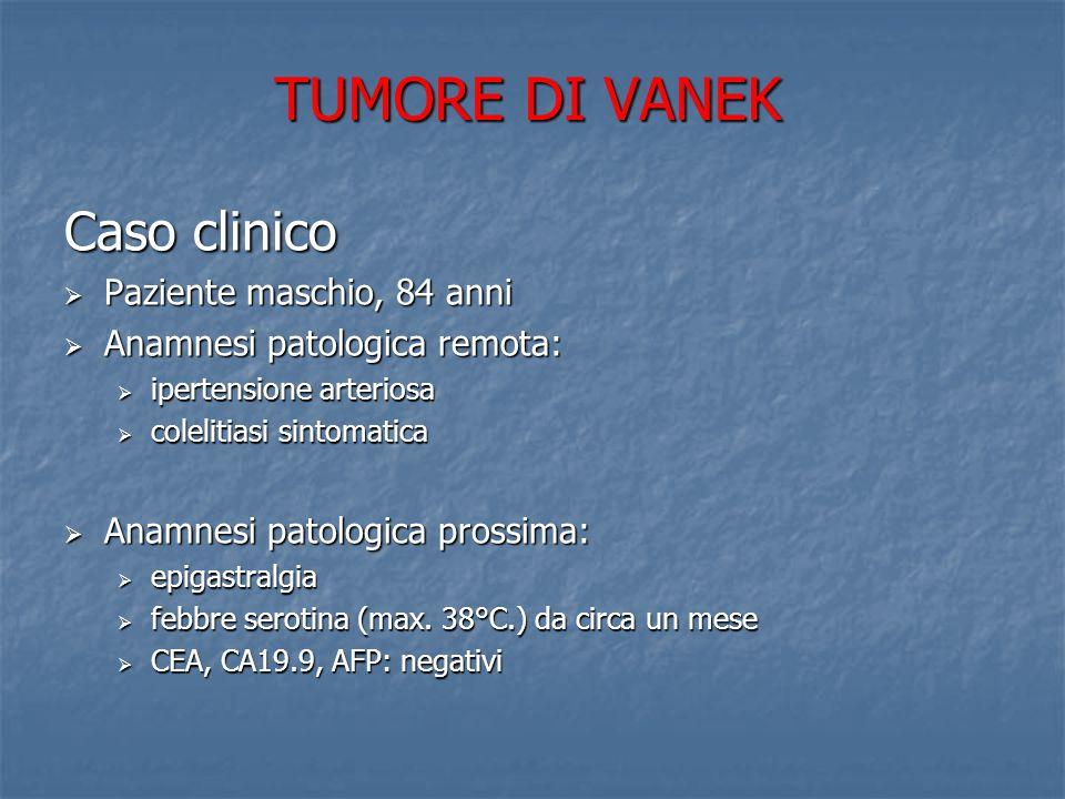 TUMORE DI VANEK EGDS: in antro, sul versante della piccola curvatura, presenza di ampia neoformazione polipoide, rivestita da mucosa apparentemente normale, occupante buona parte del lume (biopsie) ESAME ISTOLOGICO: mucosa gastrica di tipo antrale con flogosi cronica, attiva, associata a metaplasia intestinale e a tessuto di granulazione infiammatorio, HP positivo TC TOTAL BODY: lesione vegetante di circa 26mm di diametro che ispessisce la parete della piccola curvatura gastrica, no lesioni secondarie