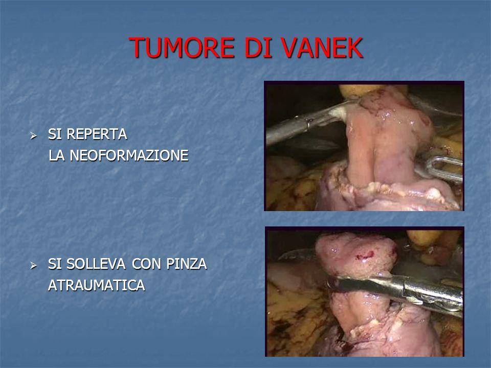 TUMORE DI VANEK RESEZIONE ALLA BASE RESEZIONE ALLA BASE DELLA LESIONE CON ENDOGIA ESAME ISTOLOGICO ESTEMPORANEO: ESAME ISTOLOGICO ESTEMPORANEO: assenza di cellule neoplastiche, completa escissione della lesione SUTURA DELLA SUTURA DELLA GASTROTOMIA IN PDS 3/0