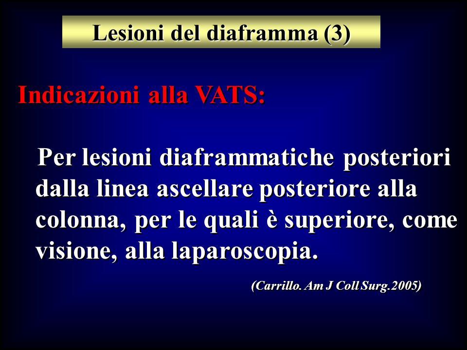 Indicazioni alla VATS: Per lesioni diaframmatiche posteriori dalla linea ascellare posteriore alla colonna, per le quali è superiore, come visione, al