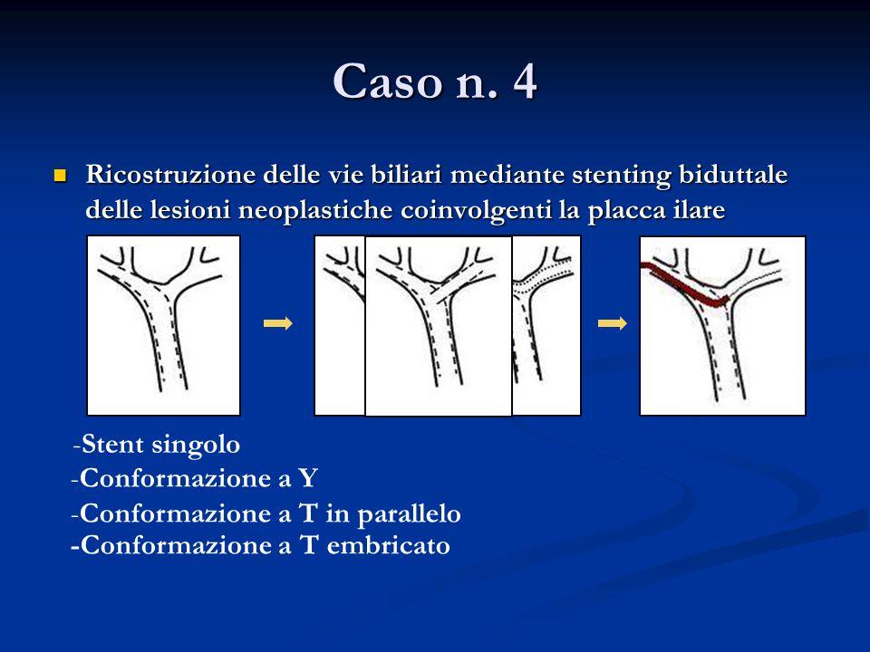-Stent singolo -Conformazione a Y -Conformazione a T in parallelo -Conformazione a T embricato Caso n.