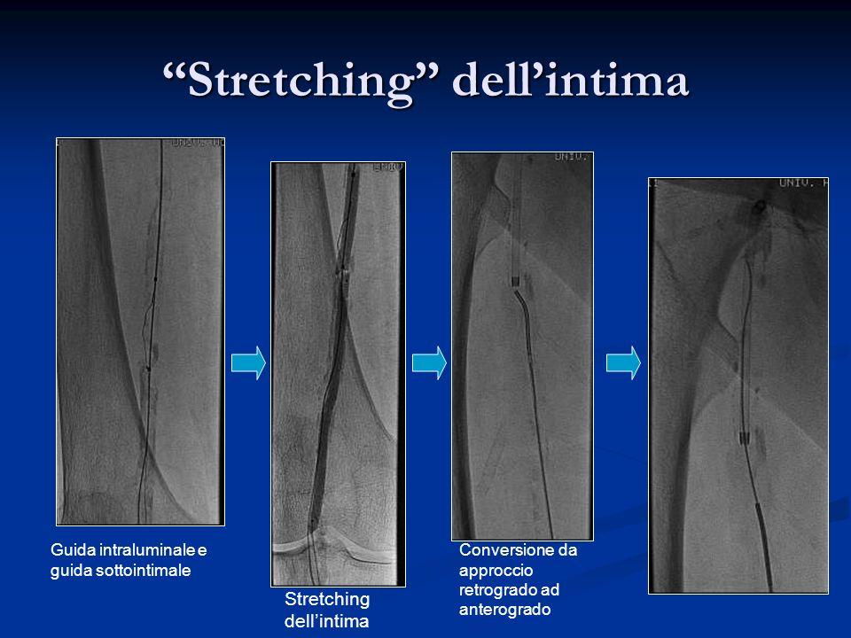 Stretching dellintima Guida intraluminale e guida sottointimale Stretching dellintima Conversione da approccio retrogrado ad anterogrado