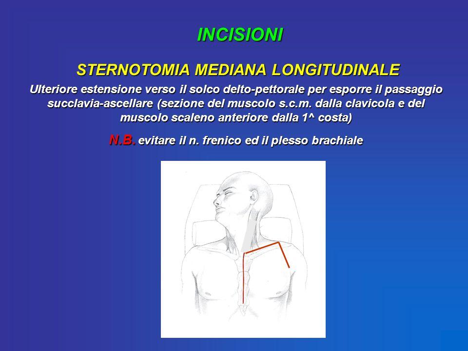 INCISIONI STERNOTOMIA MEDIANA LONGITUDINALE Ulteriore estensione verso il solco delto-pettorale per esporre il passaggio succlavia-ascellare (sezione