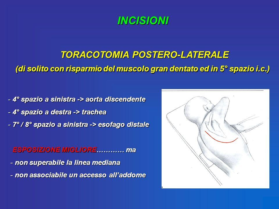 INCISIONI TORACOTOMIA POSTERO-LATERALE (di solito con risparmio del muscolo gran dentato ed in 5° spazio i.c.) - 4° spazio a sinistra -> aorta discend