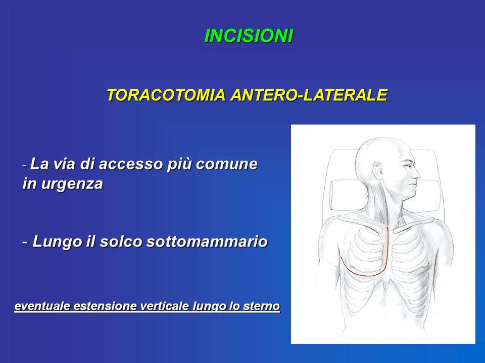 INCISIONI TORACOTOMIA ANTERO-LATERALE - La via di accesso più comune in urgenza - Lungo il solco sottomammario eventuale estensione verticale lungo lo