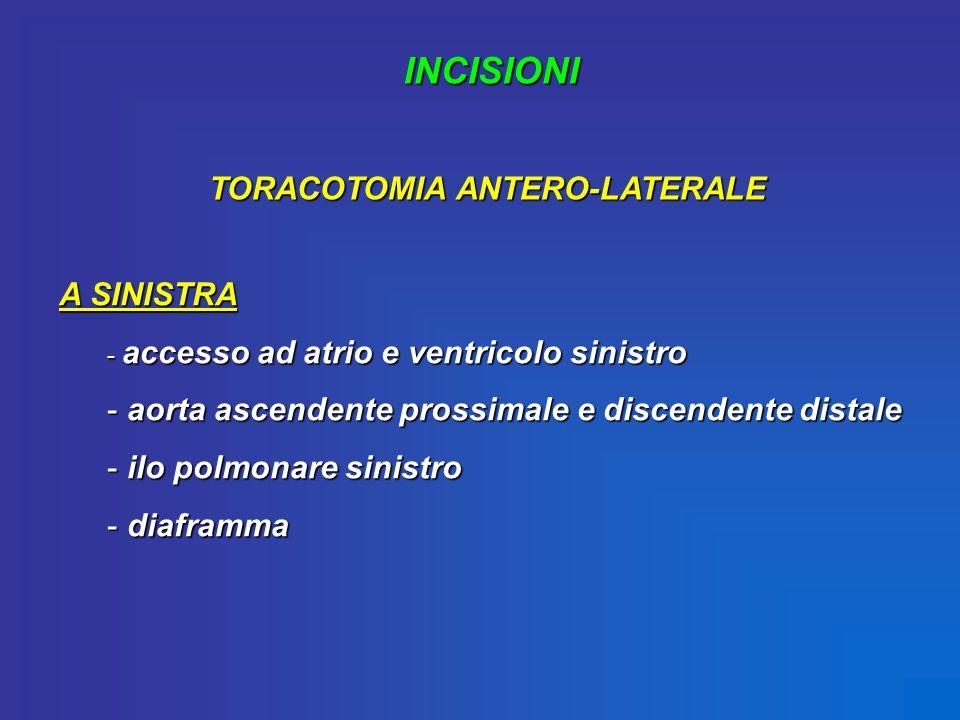 INCISIONI TORACOTOMIA ANTERO-LATERALE A SINISTRA - accesso ad atrio e ventricolo sinistro - aorta ascendente prossimale e discendente distale - ilo po