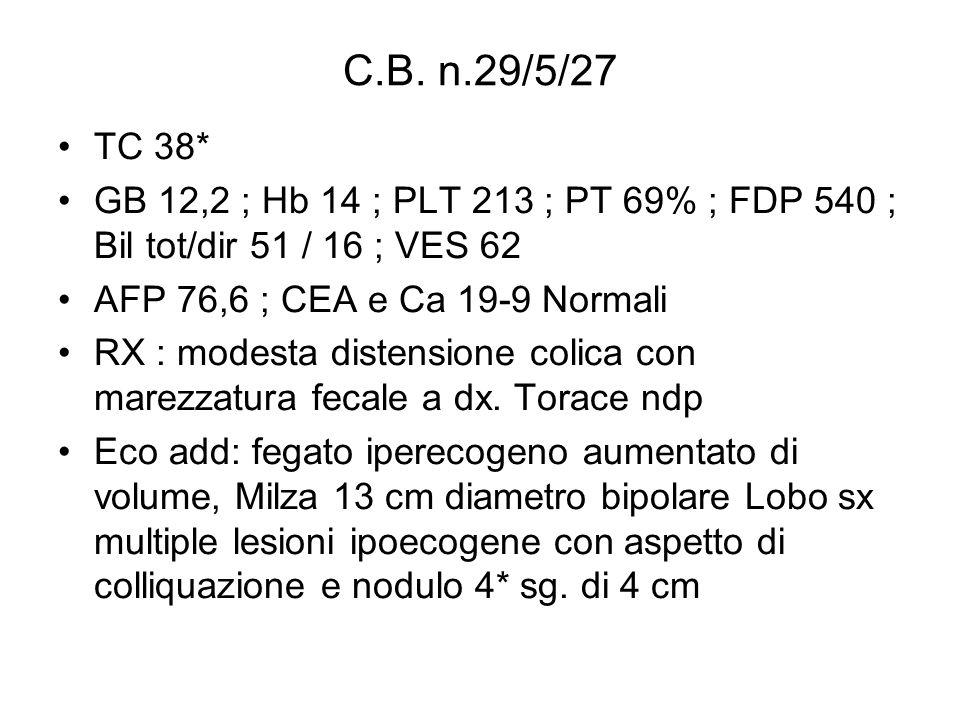 C.B. n.29/5/27 TC 38* GB 12,2 ; Hb 14 ; PLT 213 ; PT 69% ; FDP 540 ; Bil tot/dir 51 / 16 ; VES 62 AFP 76,6 ; CEA e Ca 19-9 Normali RX : modesta disten